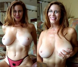 before and after MILF facial